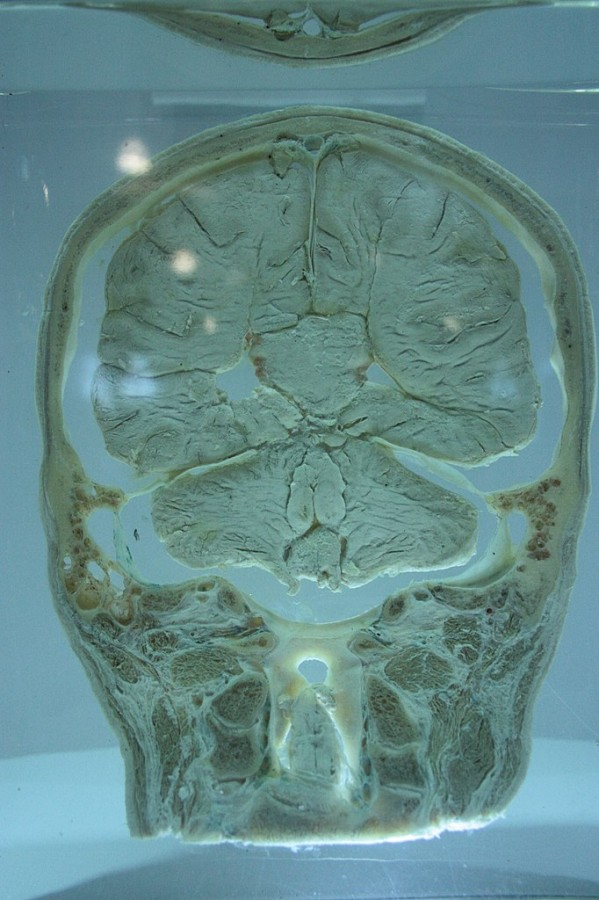 Картинка дня: секция мозга от самого Уильяма Макьюэна