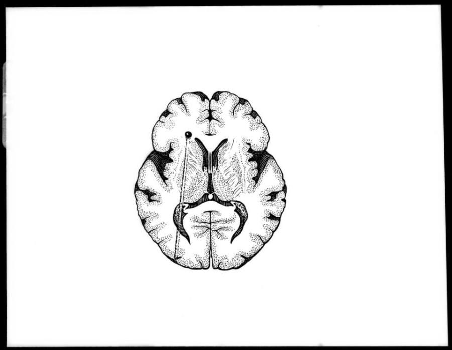 Картинка дня: мозг Авраама Линкольна