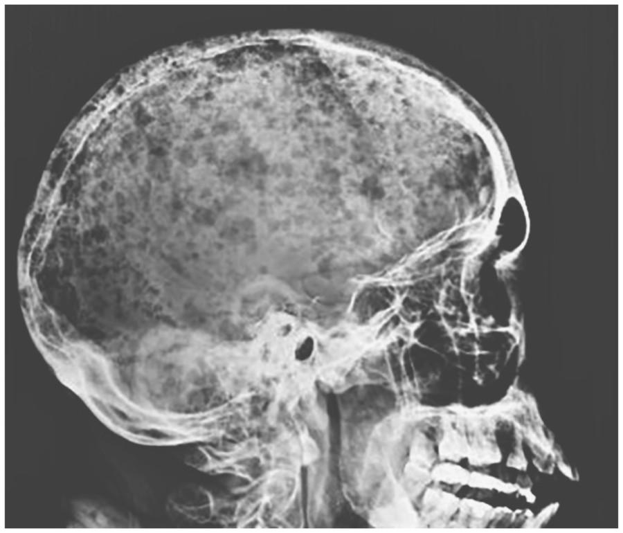 Интересный пациент: череп дождя
