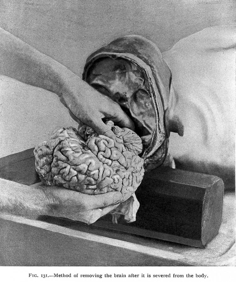 Как правильно вынуть мозг?