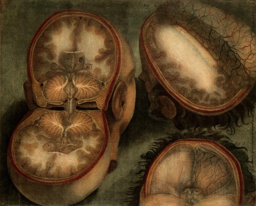 Картинка дня: томография XVIII века