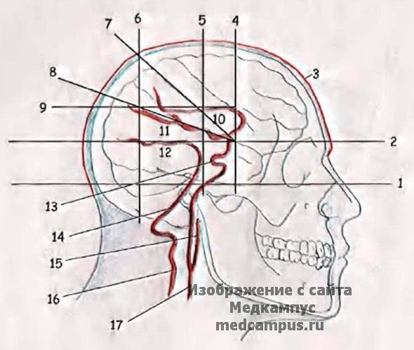 Схема черепно-мозговой