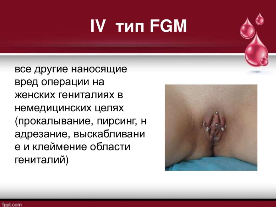 Женское обрезание порно видео 31603 фотография