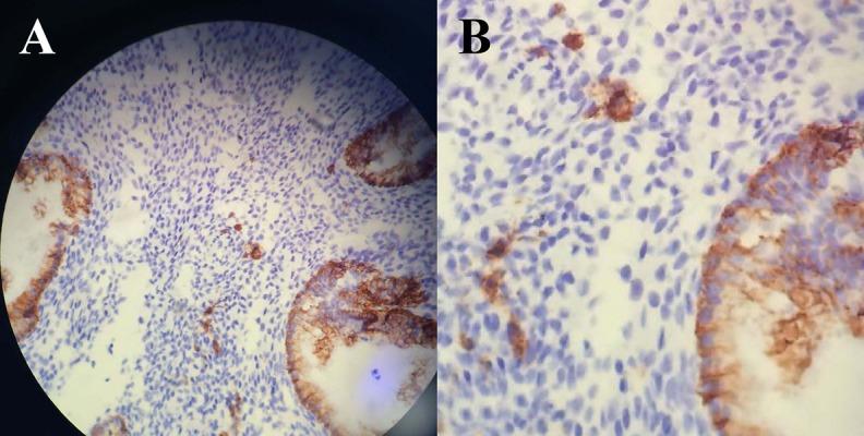Это иммуногистохимия хронического эндометрита. A. Фрагмент биоптата эндометрия, показывающий иммунореактивность синдекана 1 на поверхности железистых клеток. Плазматические клетки выделены окрашиванием синдекана 1 в центре изображения (исходное увеличение: × 400) и B. Более подробная картина иммунореактивности синдекана 1 плазматических клеток. Фото из оригинальной статьи