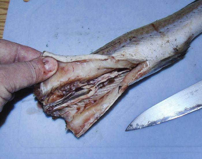 паразиты в кишечнике человека фото