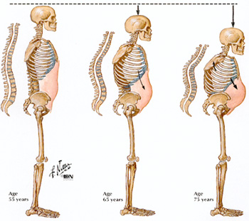 osteoporosis-compression-fracture