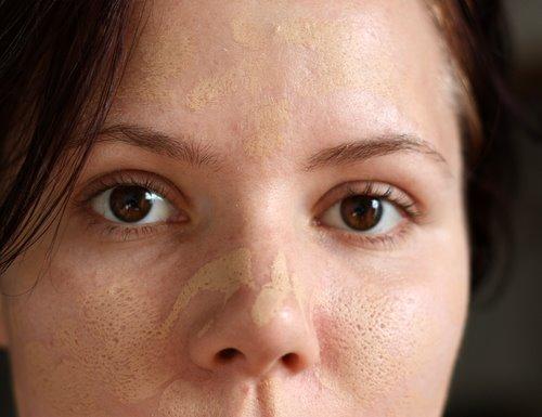 дырка на лице фото