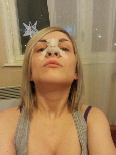 рожа на носу