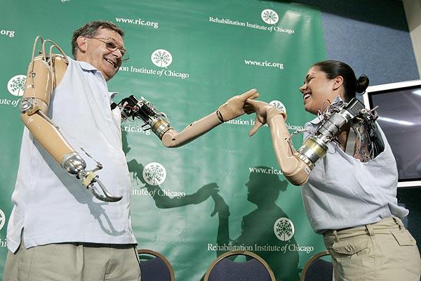 Бионические протезы руки