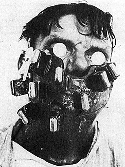 A radium mask, used in the 1920s to treat cancer of the face and neck