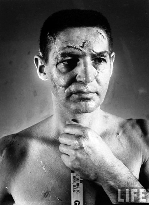 Terry-Sawchuk-The-face-of-a-hockey-goalie-before-masks-became-standard-game-equipment-1966-581x800