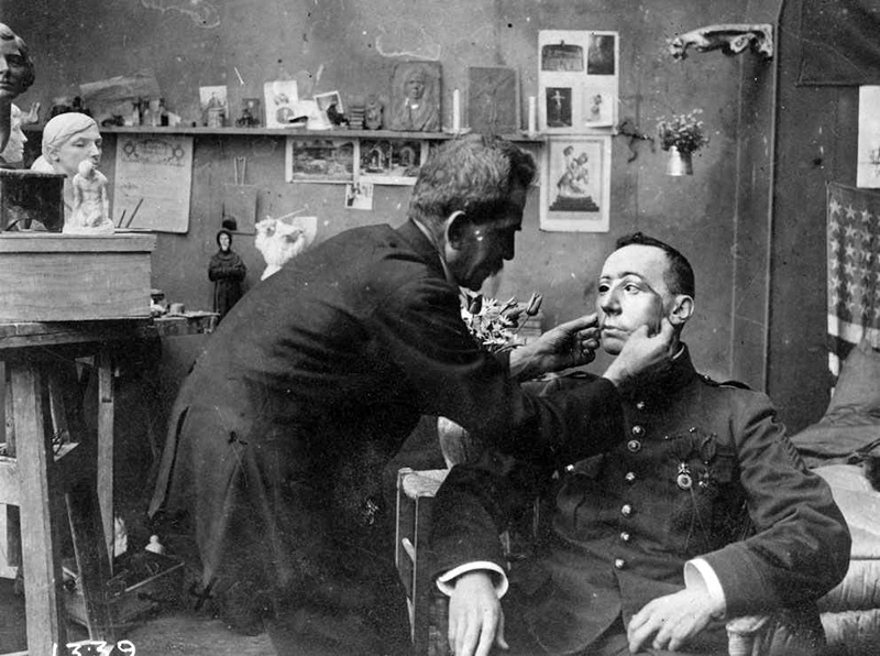 1918 French soldier, whose face was mutilated in WWI, being fitted with a mask made at the Red Cross studio of Anna Coleman Ladd