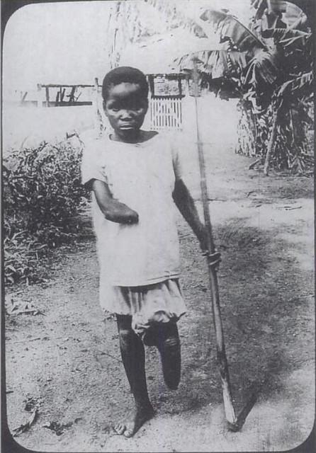 Фото мужчины смотрящего на отрубленные руки своей дочери