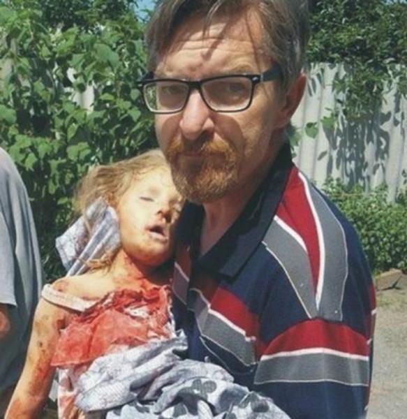 Убитая четырёхлетняя девочка на Донбассе
