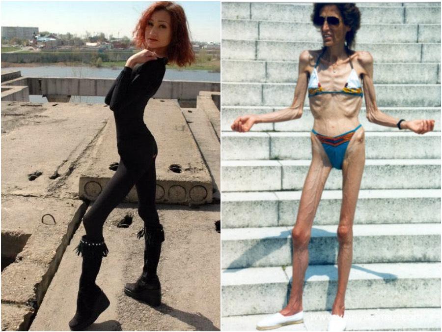 smotret-foto-modeley-anoreksichek