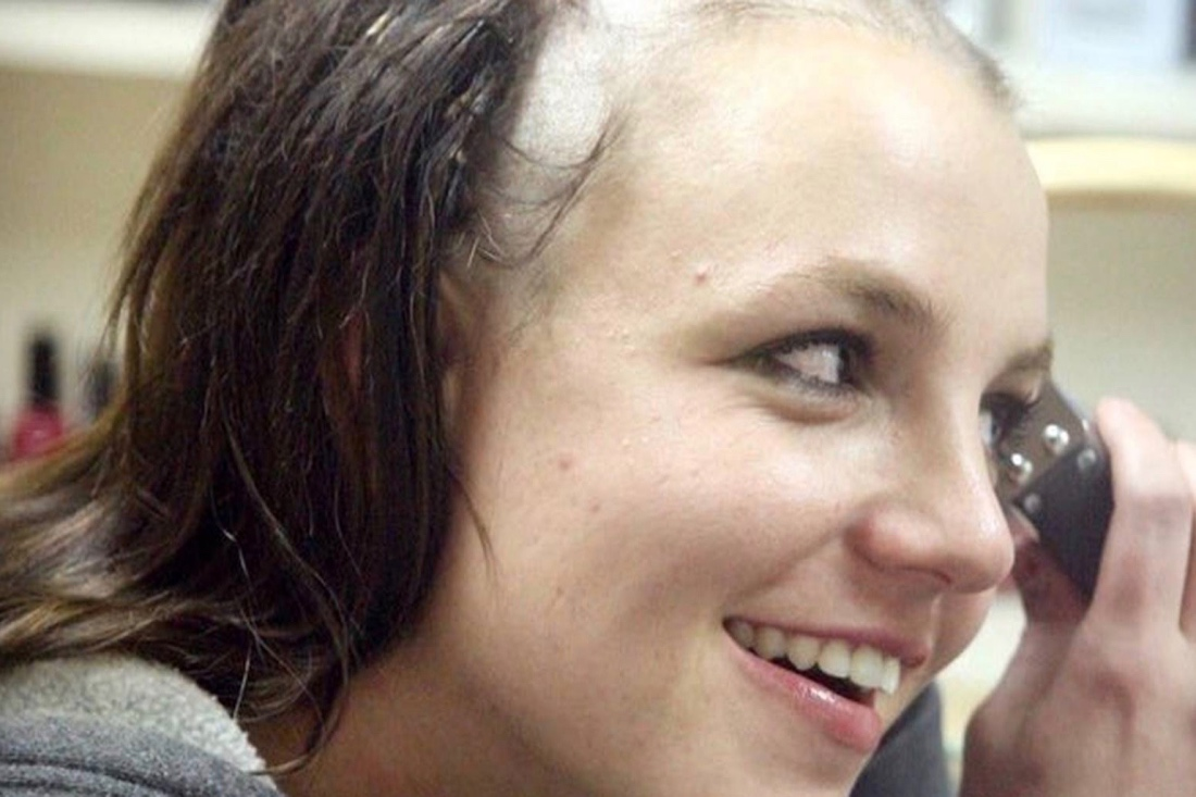 britney-head-pic-shaved