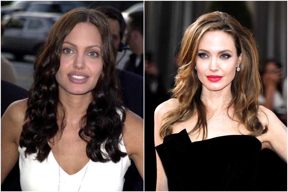 Анджелина: пусть к красоте Images, Getty, красота, приобретённая, потому, планеты, Джоли, Анджелина, всегда, естественная, независимо, досталась, хирурга, папой, ценной, наглядно, Узнав, менее, вопрос, задам