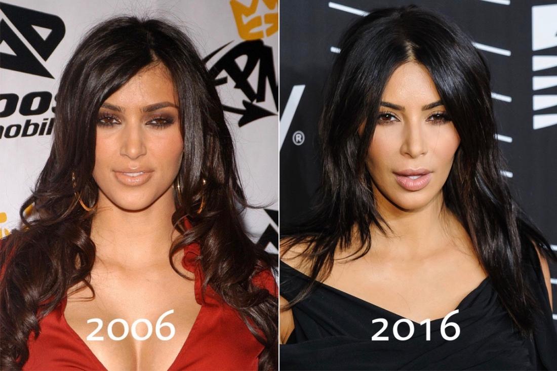 Звёзды: до и после пластики