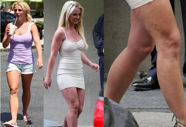 britney-spears-cellulite