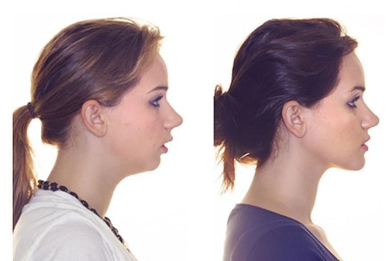 Слева пример дистального прикуса, справа - норма.