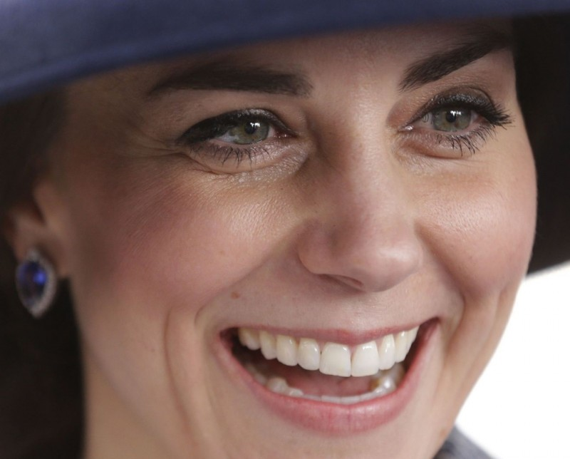 Я была уверена, что зубы у Кейт свои, а оказалось стоматолог постарался