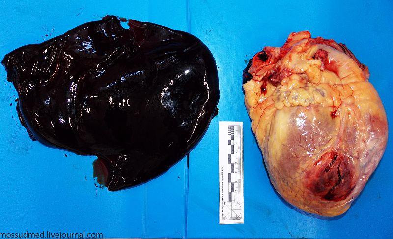 фото инфаркт миокарда сердца
