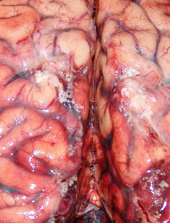 Кровотечения внутренние фото