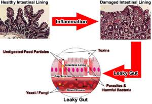 синдром протекающего кишечника у детей организм бактерии токсины грибки мозг яды повышенная кишечная проницаемость отравление разрушение развитие стимы