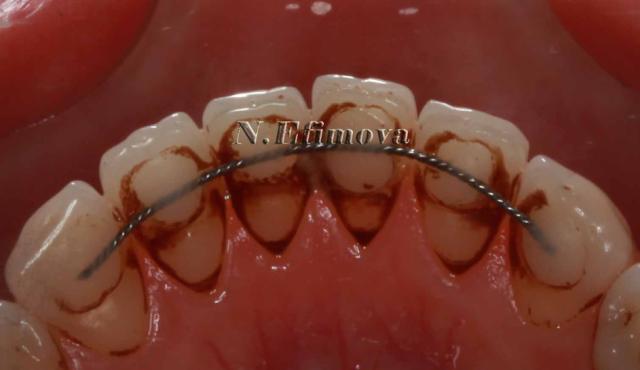 Чем снять черный налет на зубах в домашних условиях