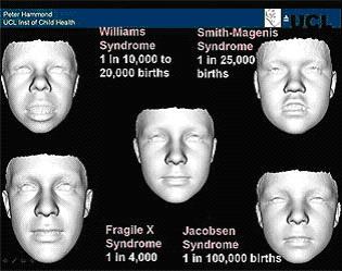 Диагноз путем анализа сканированного изображения лица в формате 3D
