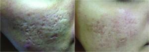 Figure_1_acne_scar-300x106