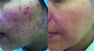 Figure_3_active_acne-300x164