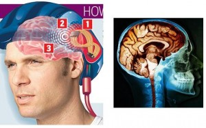 Мозг человека_2