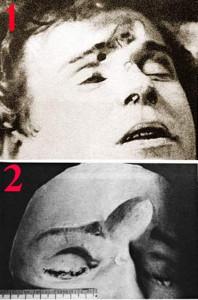 Есенин_лицо от удара