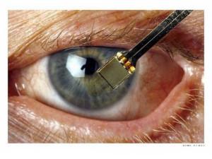 Чипирование глаз