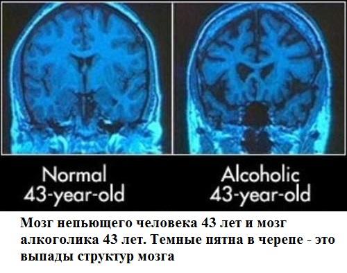 32 Мозг алкоголика на рентгене