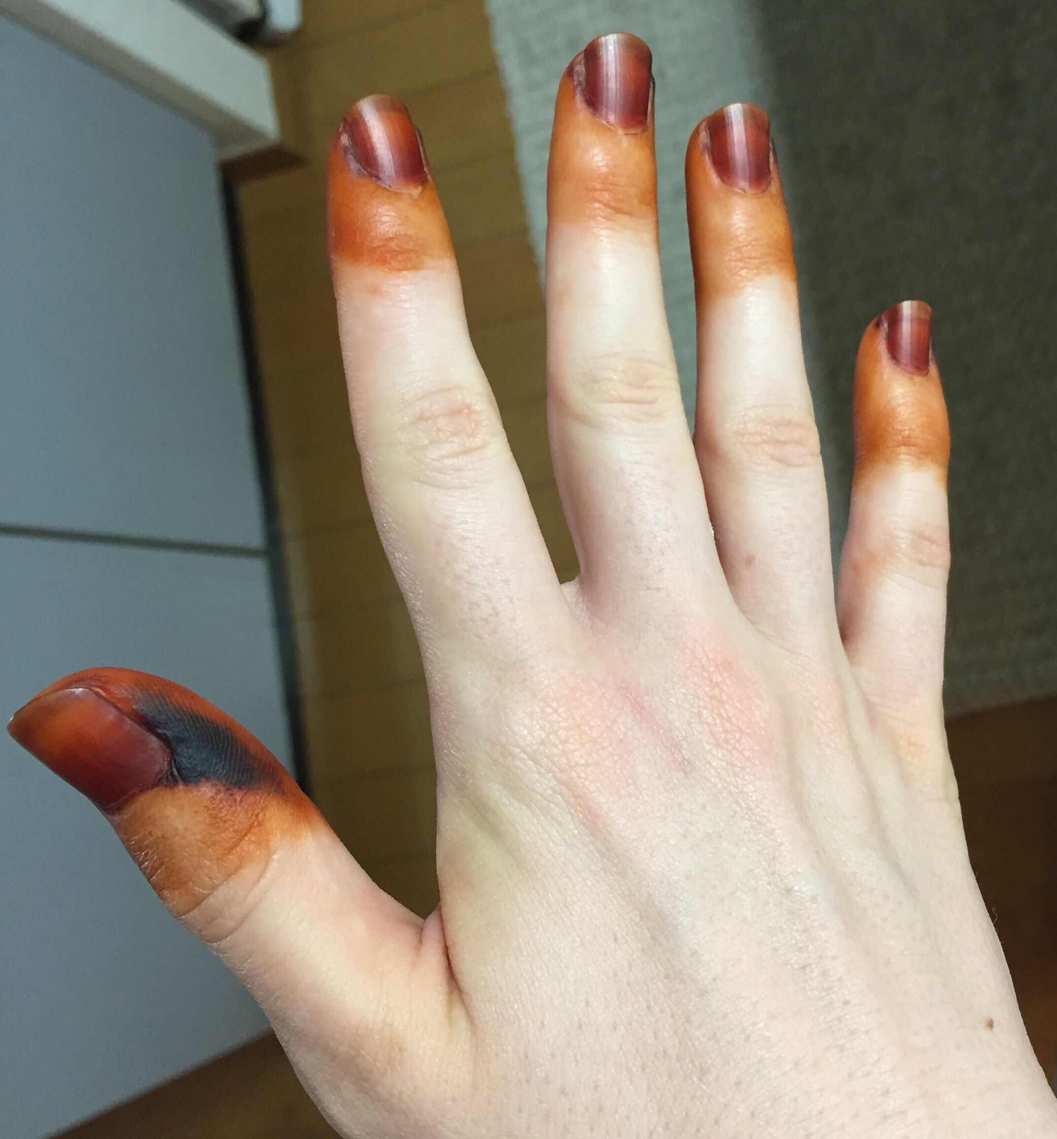 Ten How To Get Hair Dye Off Hands Tips You Need To Learn Now How
