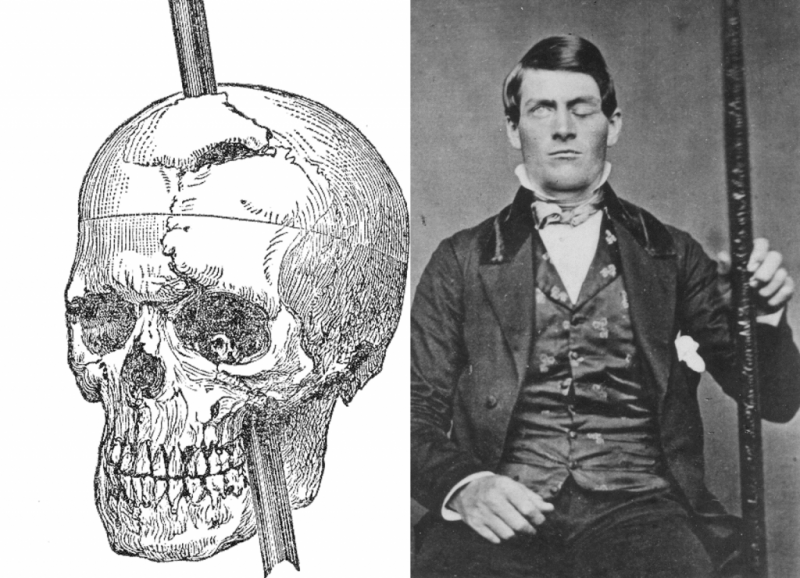 Phineas-Gage-1024x740.png