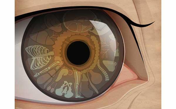 Иридодиагностика о чем говорят глаза