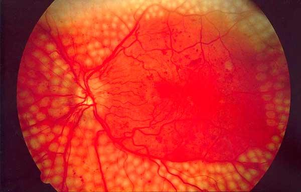 Имунная система способна бороться с болезнями глаз