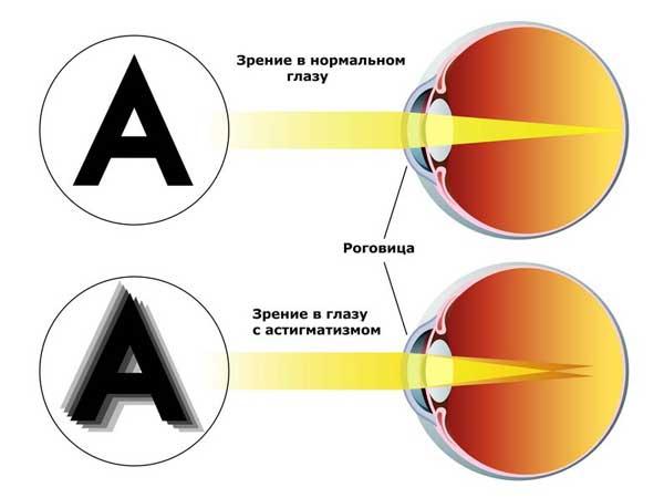Как заказывать очки для зрения