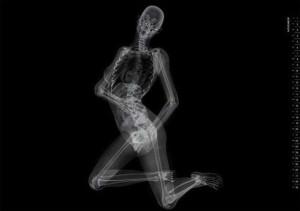 Эротические фантазии врача-рентгенолога.