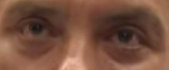 Глаза немцова