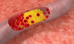 холестерин1