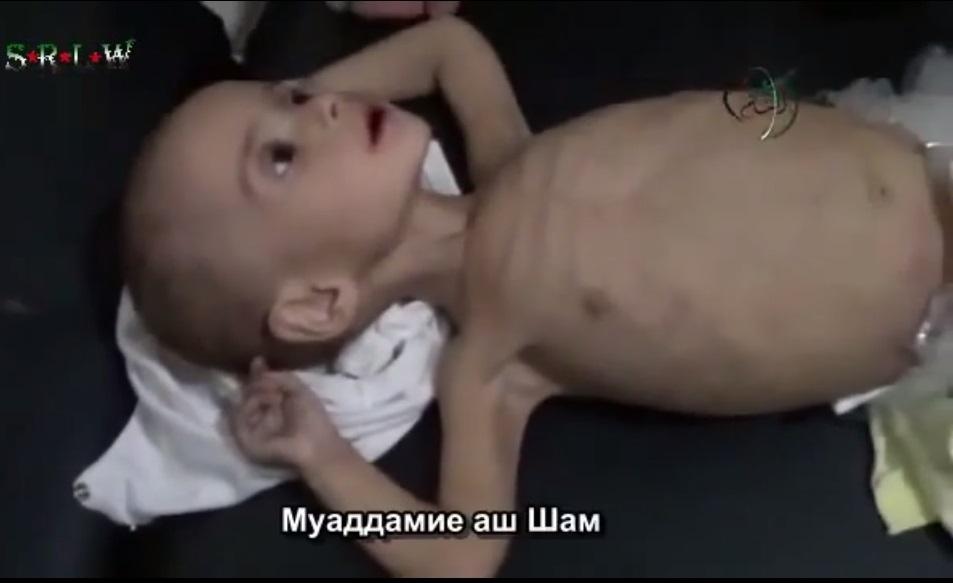 жертва голода под дамаском