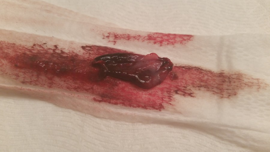 Newbie With Thanks And Questions White Tissue In Menstruation -1604
