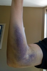 This hematoma from a botched IV in June would eventually grow the length of my arm.
