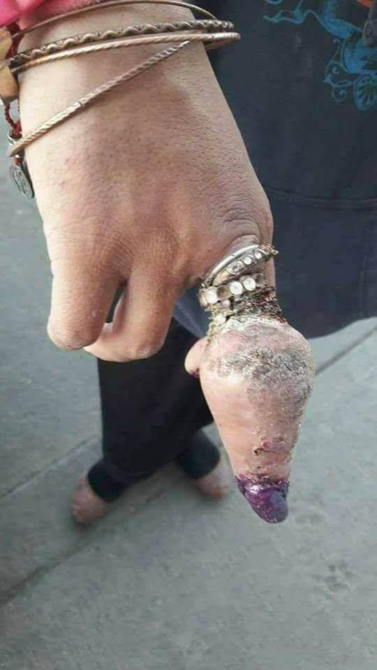 Когда дохуя любишь кольца
