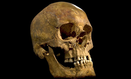 The-skull-of-Richard-III-008