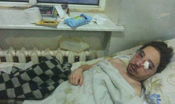 Дима Зворыкин больница